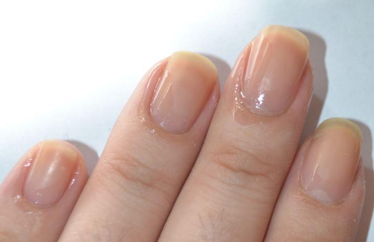Kokosový olej pomáhá nehtové kůžičce i proti lámání nehtů.